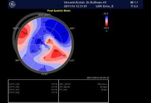 Abb-2-Gewebedoppler-Echokardiographie-20_11_2014
